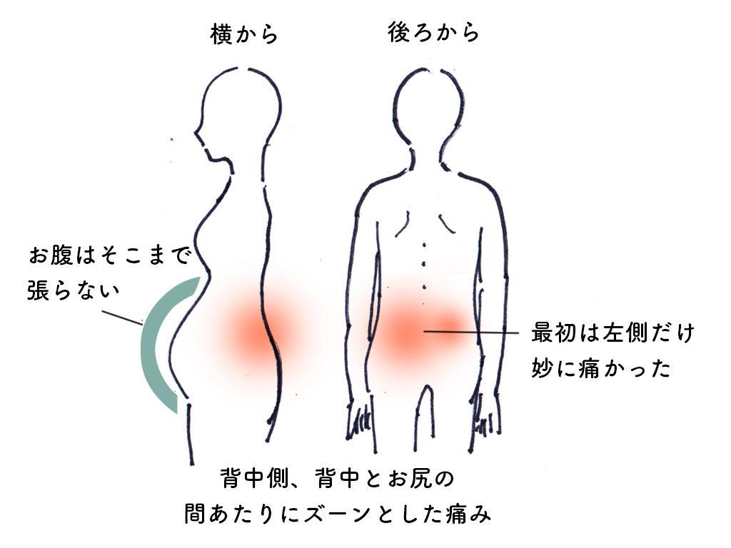 生理 前 ぎっくり腰 の よう な 痛み